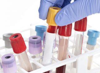 Regeneracyjna terapia dziedzicznych zaburzeń krwi